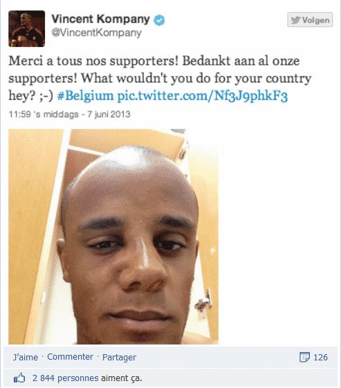 Tweet-photo de Vincent Kompany relayé sur Facebook où il apparait le visage tuméfié